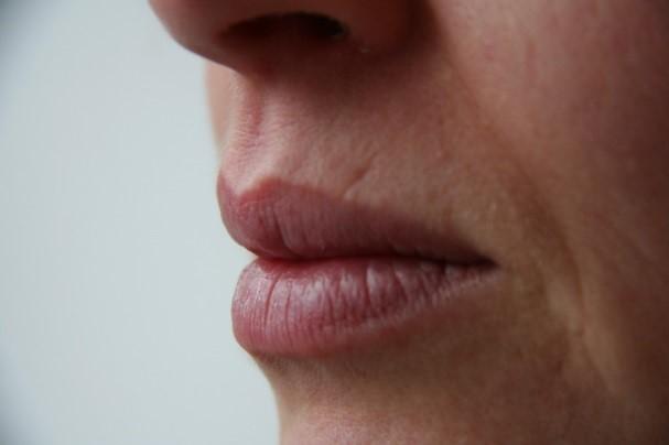 Afhangende mondhoeken